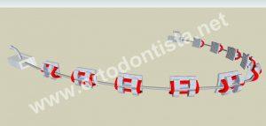 https://ortodontista.net/wp-content/uploads/2010/03/como-funciona-o-aparelho-ortodôntico-arco.jpg