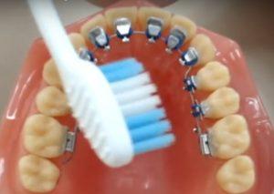 Imagem do vídeo sobre escovação do aparelho lingual