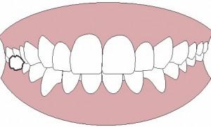 mordida cruzada de molar inferior