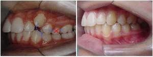 tratamento ortodôntico com extração de pre-molares