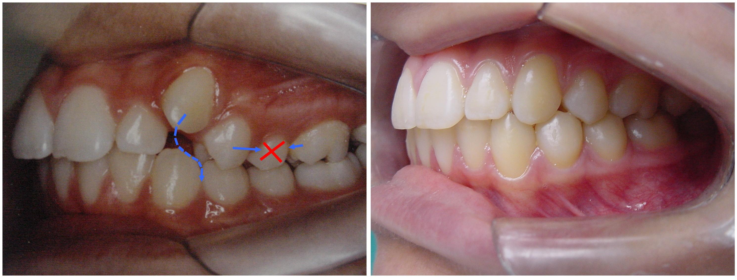 3d78b4369 tratamento ortodôntico com extração de pre-molares. As setas azuis mostram  a movimentação dos dentes fechando o espaço criado pela extração do segundo  ...