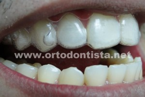 Invisalign alinhador e attachment
