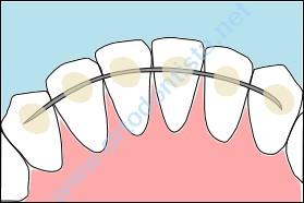 0391be88a Contenção ortodôntica fixa - como funciona e como higienizar.