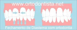 fechar Diastema com aparelho ortodôntico