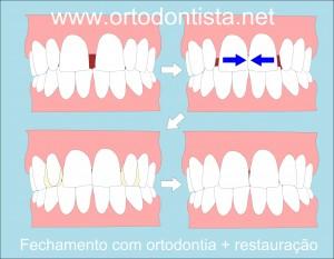fechar diastema com ortodontia e resina