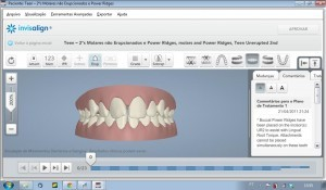 Invisalign-ClinCheck-1-O-software-de-palnejamento-virtual.-300x175