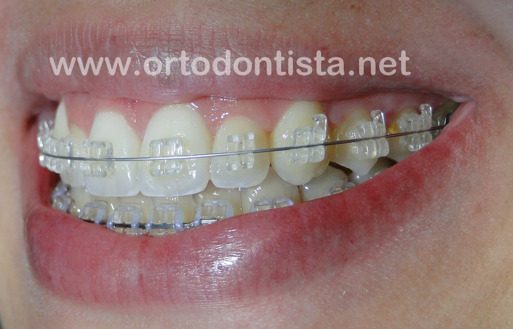 35109f3c3 Tratamento ortodôntico – uma decisão difícil