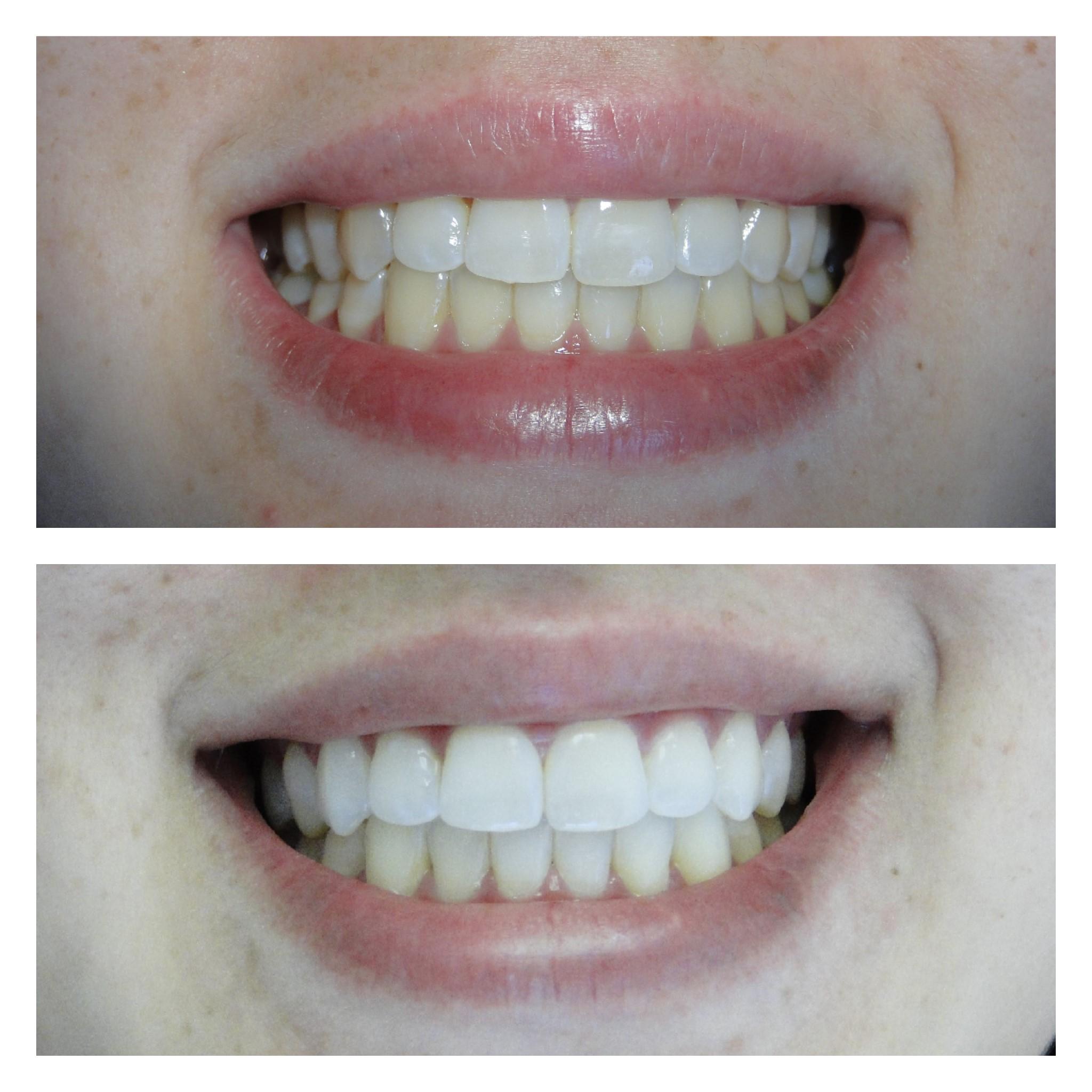 Clareamento Dental Ortodontista Net