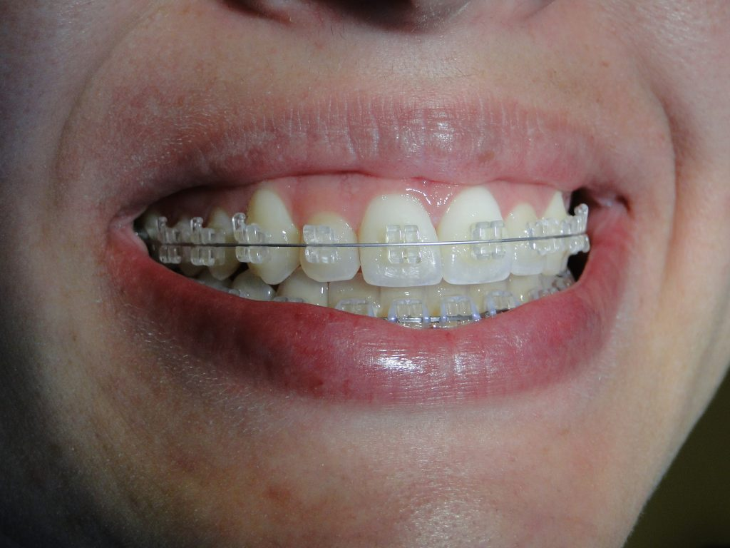 Aparelho Estetico Amarelado Ortodontista Net