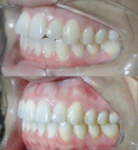 Correção de mordida aberta com Invisalign lateral esquerda