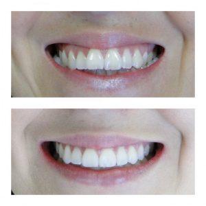 Correção de mordida cruzada bilateral sorriso
