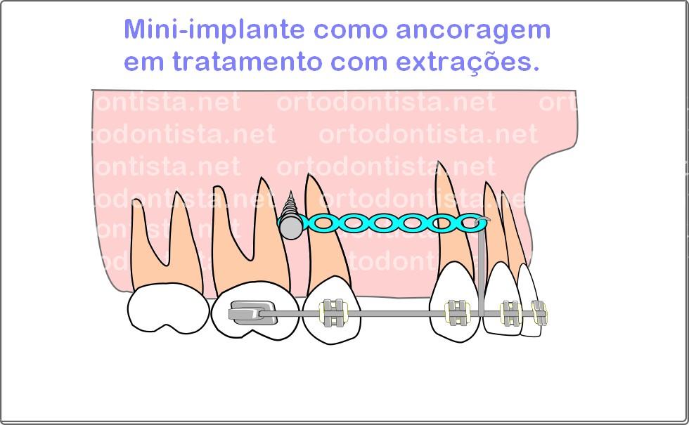 Mini-implantes - Foto 01