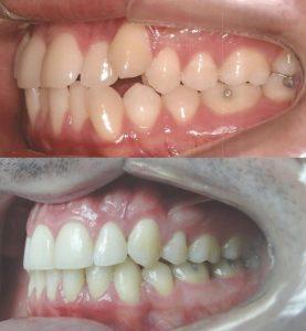 Tratamento ortodôntico com extrações vista esquerda