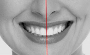 Linha média ortodontia