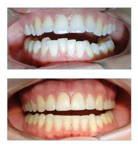 dentes muito apinhados semiaberta