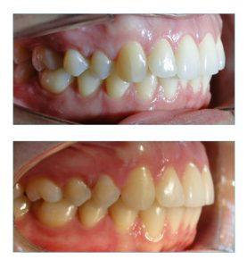 dentes muito apinhados vista direita
