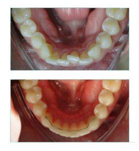 Dentes muito apinhados vista inferior