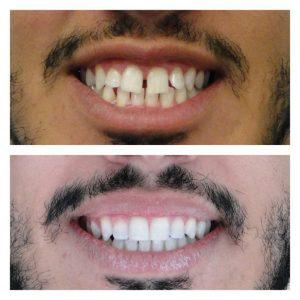 Fechamento de diastema com aparelho lingual - sorriso