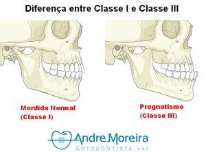 Prognatismo - Classe III